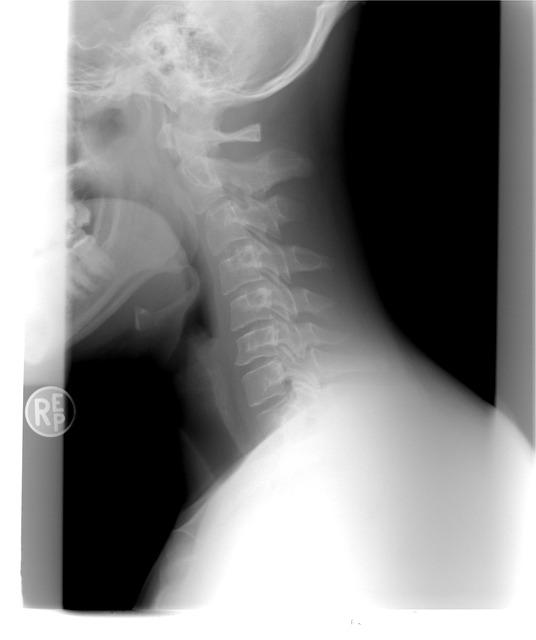 cervical-spine-1129431_640